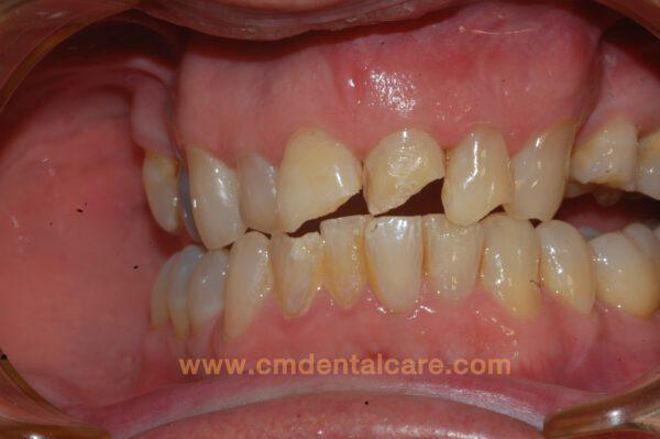 ฟันบิ่น ฟันแตก ฟันปลอม เชียงใหม่